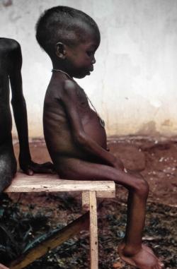 zagłodzona dziewczynka, fot. dr Lyle Conrad